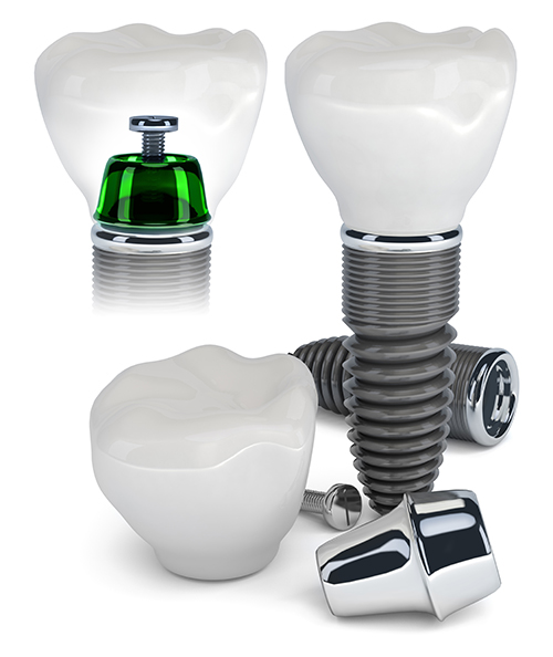West Hartford Dental Implants