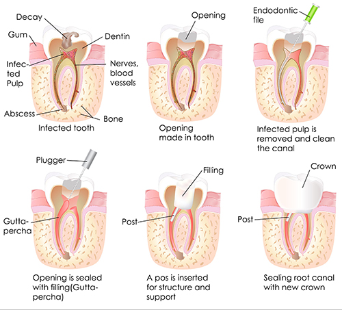 West Hartford Root Canals